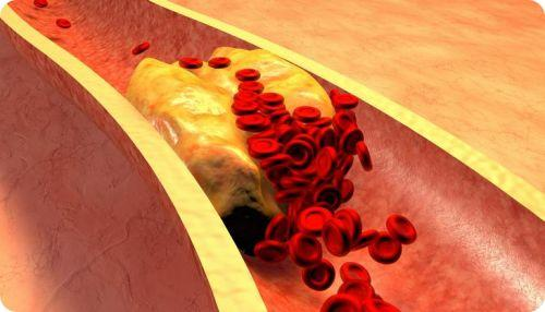 high cholesterol treatment natural remedies