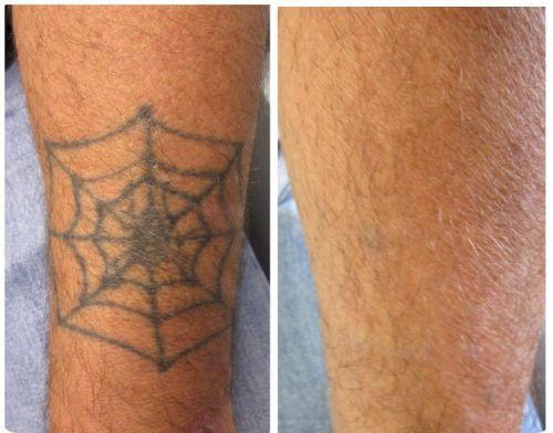 tattoo removal creams